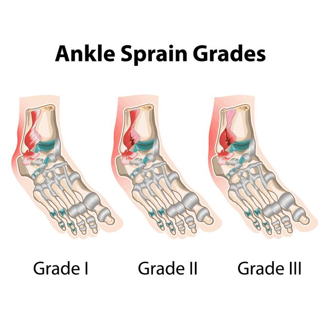Ankle sprain grades