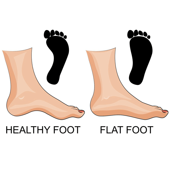 Flat foot vs healthy foot